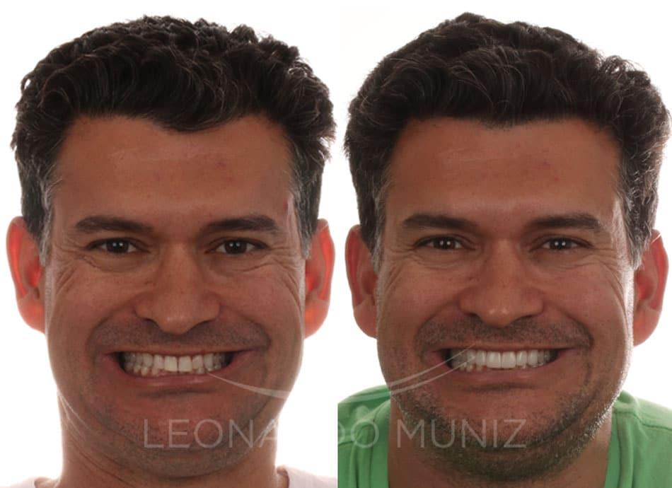 reanatomizações dentais