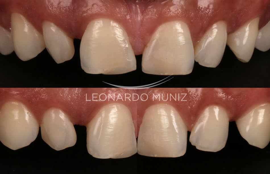 facetas dentais