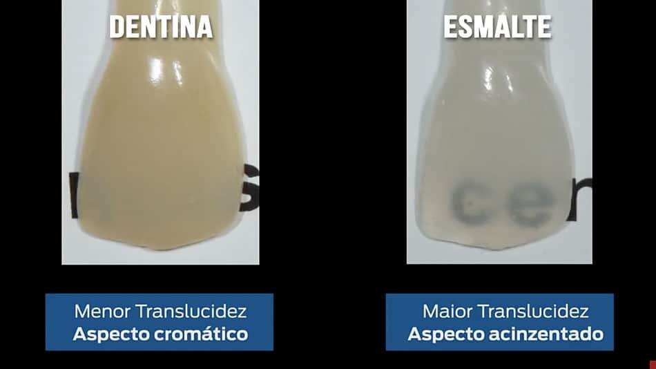 escurecimento dental
