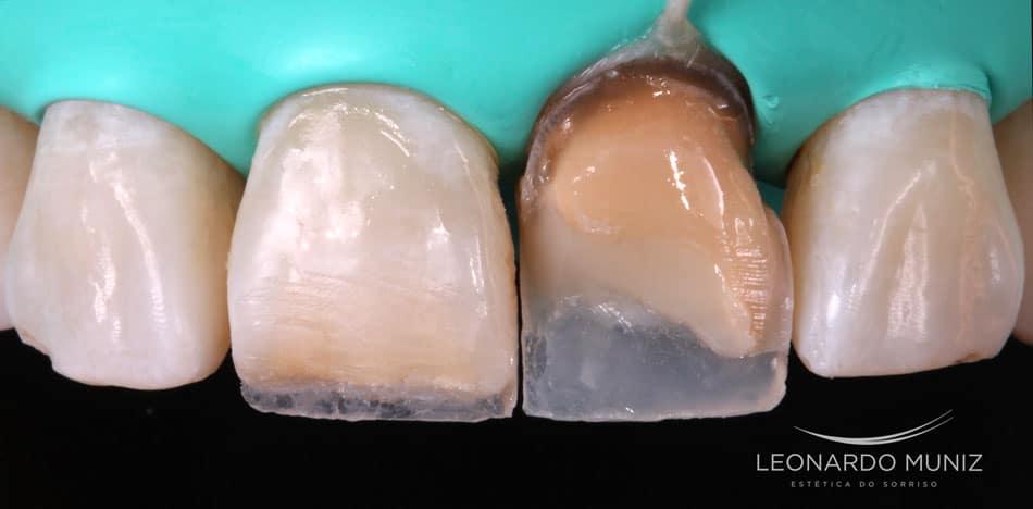 dentes escuros